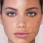 dry_skin_face